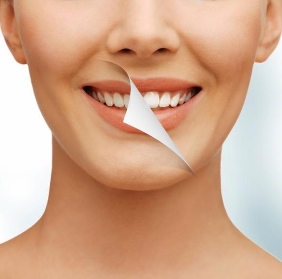 Wybielanie zębów – FAQ, czyli odpowiedzi na najczęstsze pytania LIFESTYLE, Uroda - Osoby z białymi zębami wyglądają o 5 lat młodziej i 20% atrakcyjniej - wynika z badań brytyjskich naukowców. Dlatego biały uśmiech jest nieustannie modny. Eksperci odpowiadają na najczęściej zadawane pytania związane z zabiegiem.