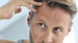 Winowajcy męskiego łysienia LIFESTYLE, Uroda - 2/3 Polaków uważa, że geny są głównym czynnikiem wpływającym na męskie łysienie. Ponad połowa z nich winą obarcza także wiek. Które czynniki faktycznie mają wpływ na nadmierną utratę włosów?