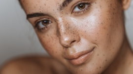 """BRĄZOWE PLAMKI NA SKÓRZE? LIFESTYLE, Uroda - Nasza skóra zmienia się przez całe życie. I niestety nie zawsze są to zmiany na lepsze. Zmiany pigmentacyjne i przebarwienia to bardzo częste """"pamiątki"""" przywożone z wakacji. Zauważyłaś u siebie nieestetyczne brązowe plamki? Być może jest to melasma."""